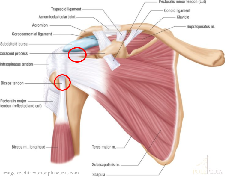 An illustration of the shoulder and where tendonitis occurs by motionplusclinic