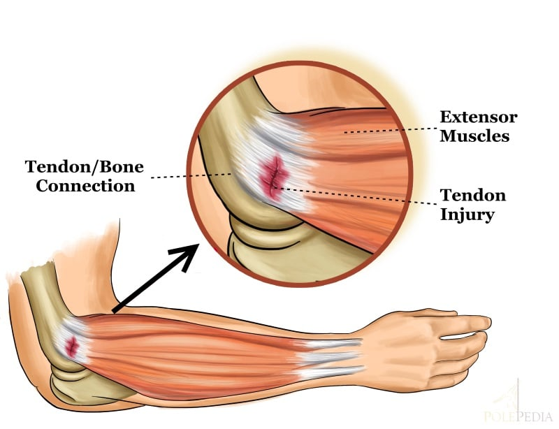 Image illustrating what tendonitis looks like in the elbow
